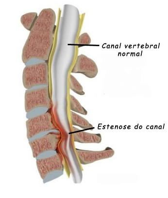 Estenose do Canal Cervical