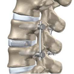 Cirurgia de Espondilolistese: Artrodese