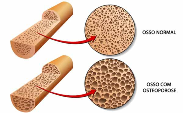 Cirurgia de Fratura na Coluna: Osteoporose
