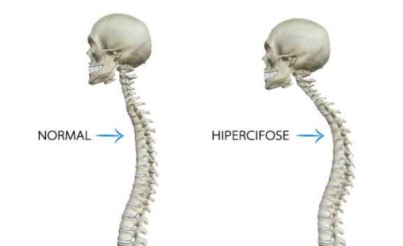 Tratamento pra cifose: hipercifose