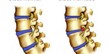 hernia de disco na coluna cervical tratamento