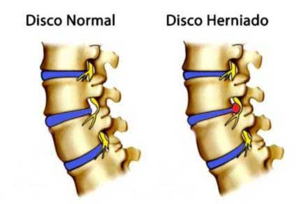 Tratamento para Hérnia de Disco: Diagnóstico
