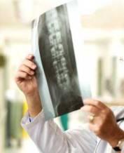 Tratamento para Espondilolistese: Diagnóstico