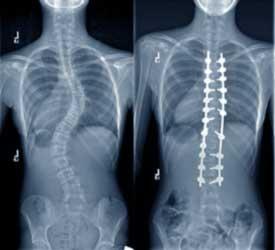 Cirurgia de Escoliose: Exame