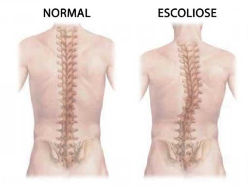 Tratamento para Escoliose: Diagnóstico