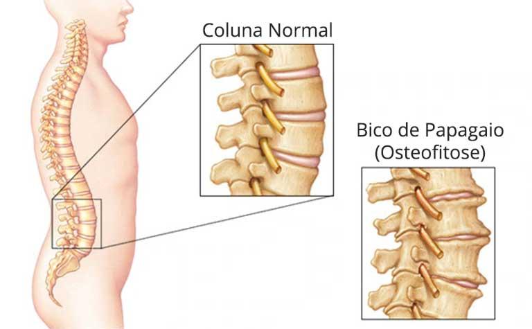 Bico de Papagaio na coluna vertebral (osteofitose)