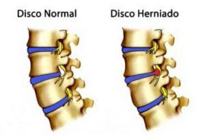 cirurgia de hérnia de disco
